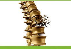 Egészséges csontok? Megmutatjuk, mi segíthet!